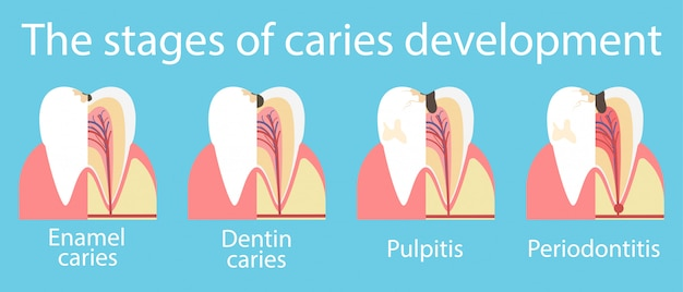 Development of dental caries banner Premium Vector