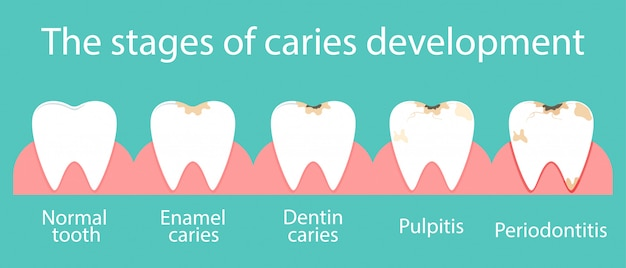 Development of dental caries in the oral cavity. Premium Vector