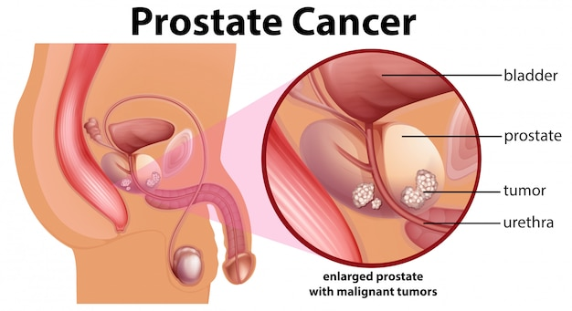 Fine Prostate Cancer Diagram Vignette Anatomy And Physiology