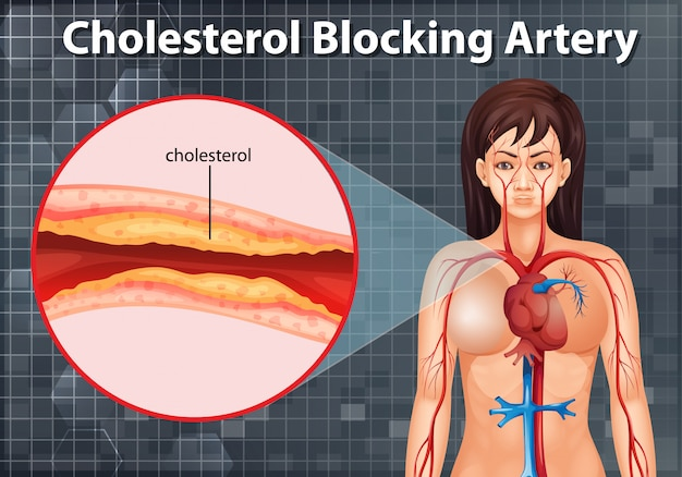 Diagram showing cholesterol blocking artery in human body Free Vector