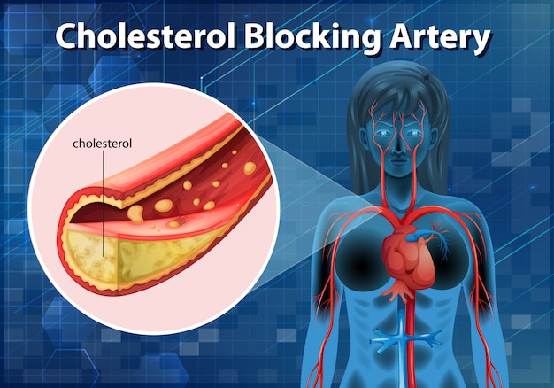 Diagram showing cholesterol blocking artery in human body Premium Vector