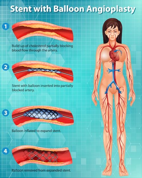 인체의 콜레스테롤 차단 동맥을 보여주는 다이어그램 무료 벡터