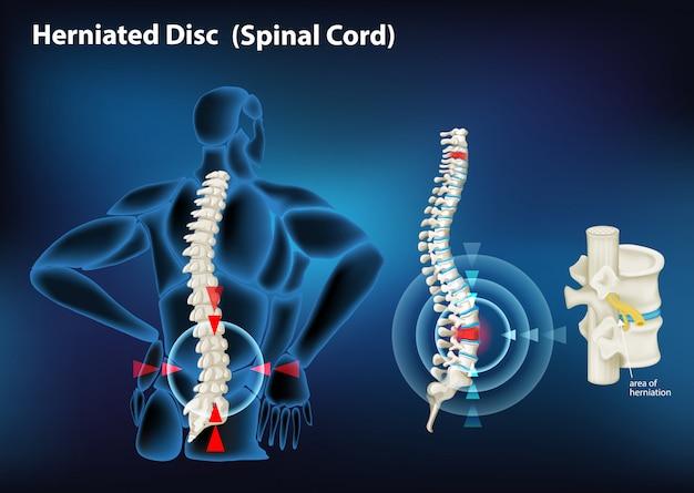 人間の椎間板ヘルニアを示す図 無料ベクター
