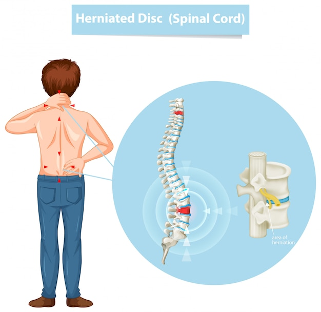 Diagram showing herniated disc Free Vector