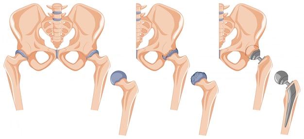 Diagram showing the hip bone treatment Free Vector
