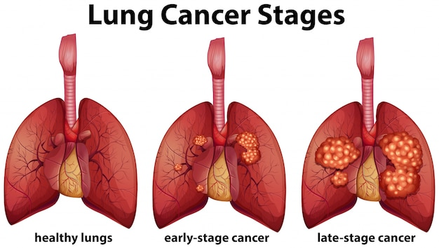 Diagram showing lung cancer stages vector premium download diagram showing lung cancer stages premium vector ccuart Choice Image