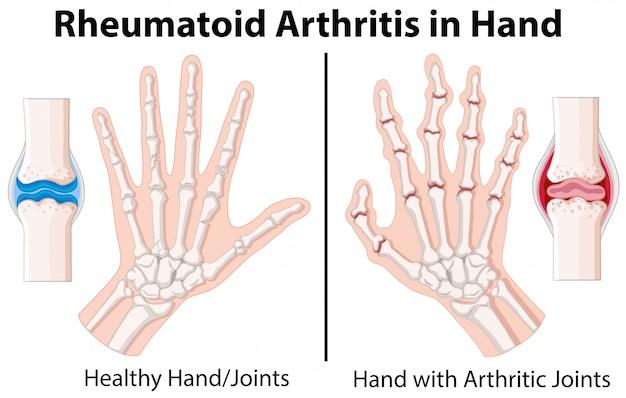 Diagram Showing Rheumatoid Arthritis In Hand Vector Premium Download