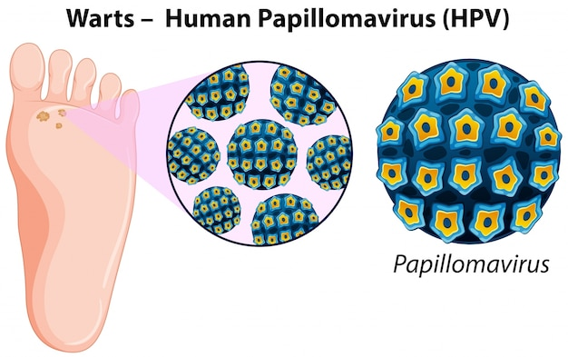 Diagram showing warts in human foot Free Vector