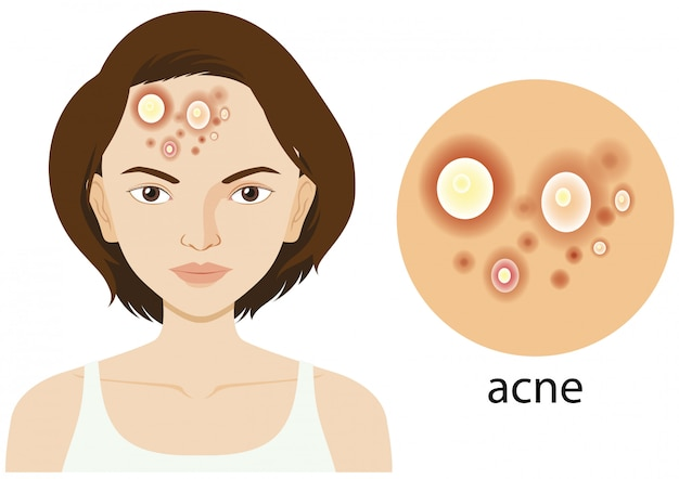 Diagram showing woman with acne problem Free Vector