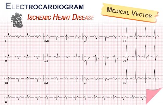 Electrocardiogram of ischemic heart disease ( myocardial infarction ) Premium Vector