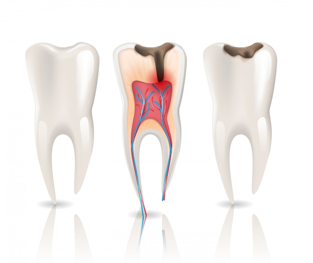 Enamel caries infection and health tooth Premium Vector