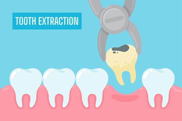 Extraction of teeth. cartoon yellow teeth with tartar and plaque removed from the oral cavity. Premium Vector