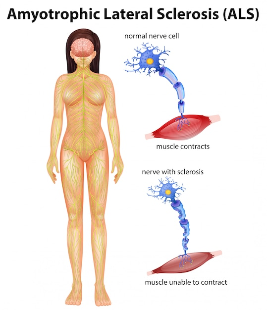 Female amyotrophic lateral sclerosis Premium Vector