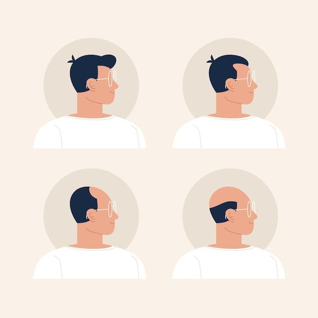Плоская рисованная иллюстрация этапов выпадения волос Бесплатные векторы