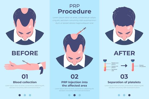 Плоская рисованная инфографика процедуры prp Бесплатные векторы