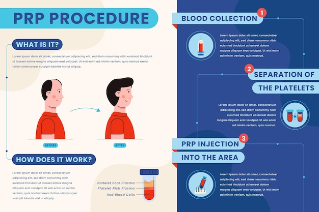 Flat-hand drawn prp procedure infographic Free Vector