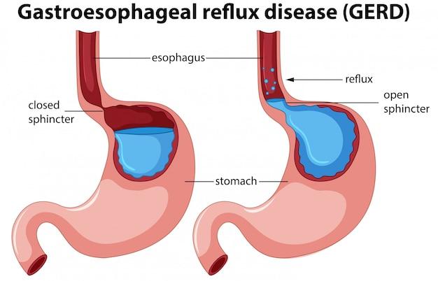 Gastroesophageal reflux disease anatomy Free Vector