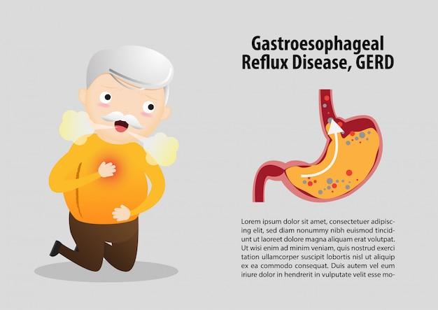 胃食道逆流症(gerd)テンプレート Premiumベクター