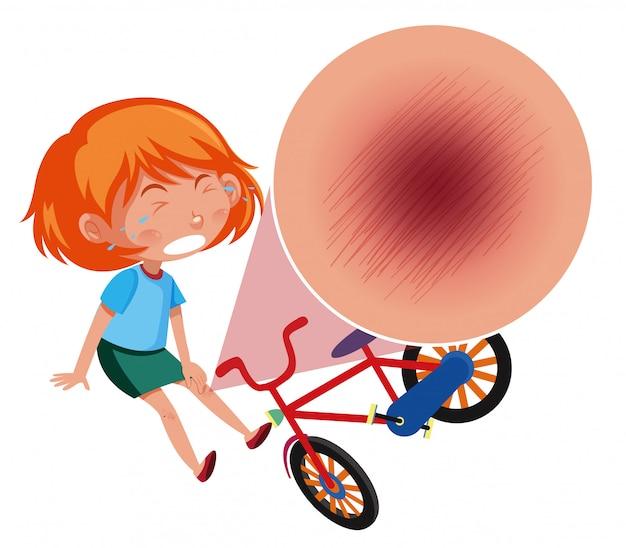 A girl falling off the bike Premium Vector