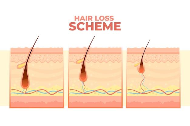 Схема градиентного выпадения волос Бесплатные векторы