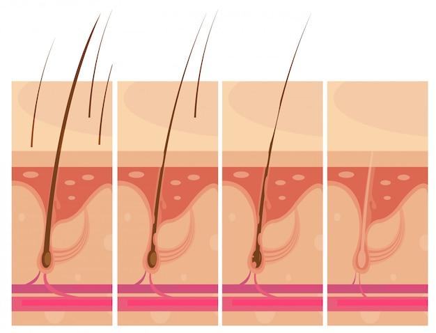 Hair loss storyboard conceptual compositions set Free Vector