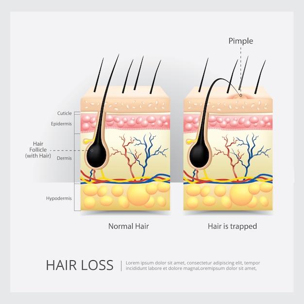 Hair loss structure vector illustration Premium Vector