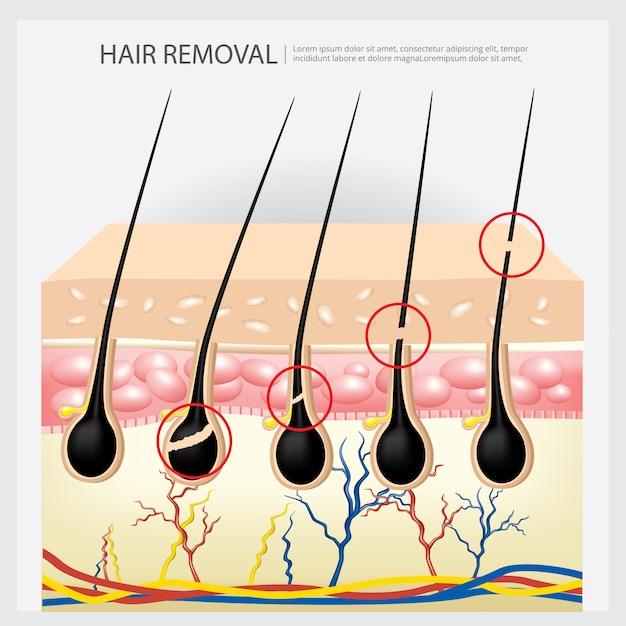 Пример удаления волос Premium векторы
