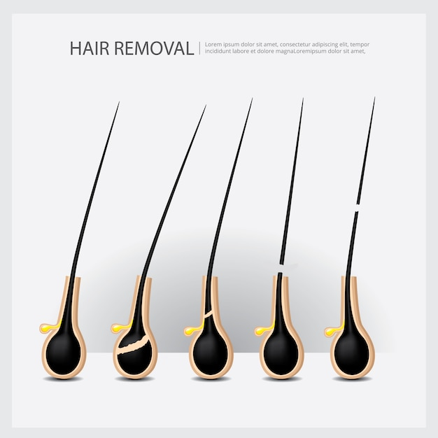 Hair removal example illustration Premium Vector