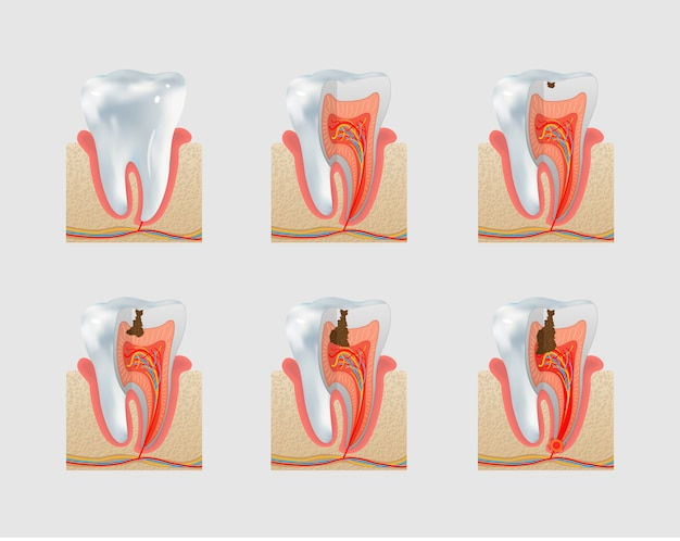 Healthy tooth and dental caries icon set Premium Vector