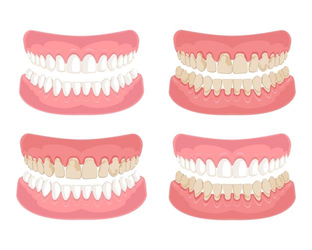 Healthy and unhealthy, dirty teeth. Premium Vector