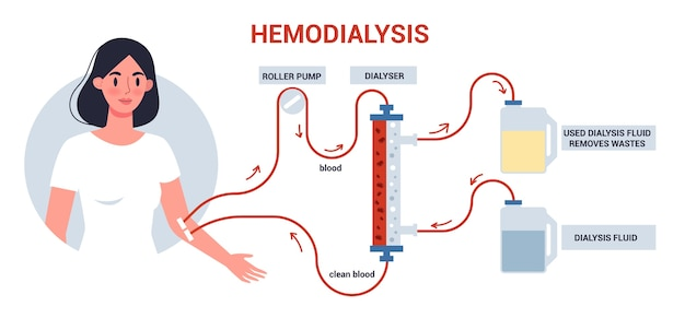 Hemodialysis for kidney treatment infographics. woman get a kidney disease treatment. patient having a internal injection. Premium Vector