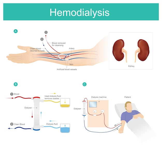 Hemodialysis. patient blood is put through a filter outside your body, cleaned, and then returned to you. Premium Vector