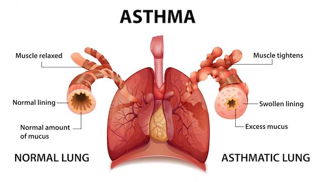 Free Vector   Human anatomy asthma diagramFreepik