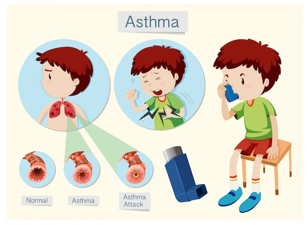 A human anatomy and health asthma Premium Vector