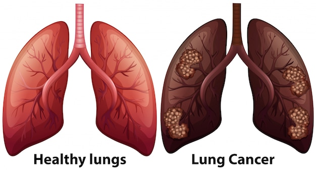 Human anatomy of lung condition Premium Vector