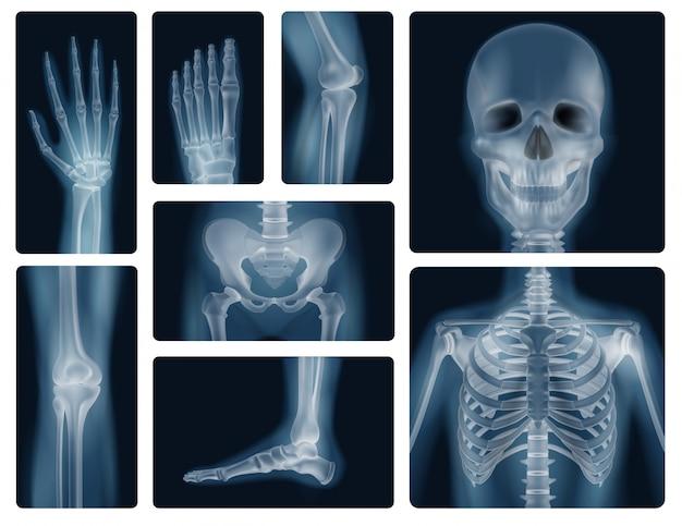 Human bones realistic x-ray shots Free Vector