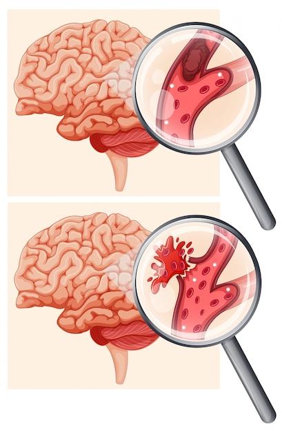 Человеческий мозг и геморрагический инсульт | Премиум векторы