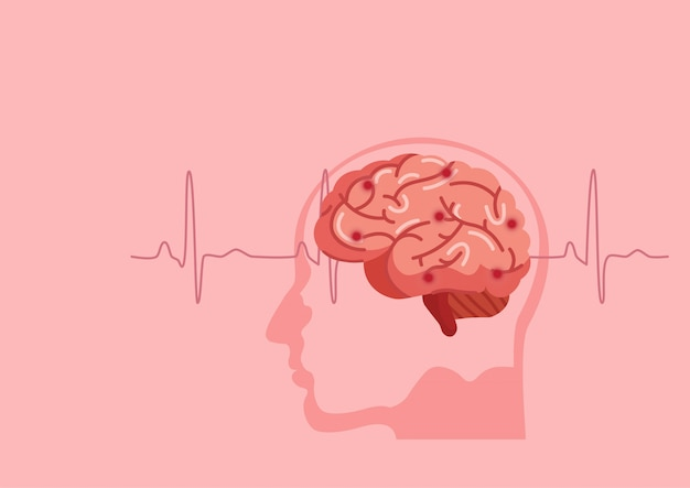 Human brain stroke illustration. Premium Vector