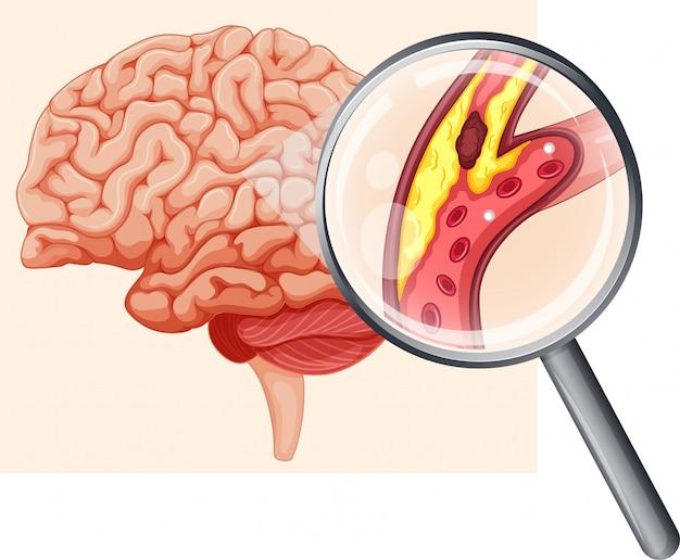 Human brain with atherosclerosis Premium Vector