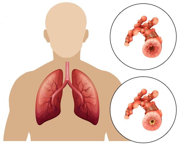 Human chronic obstructive pulmonary disease Premium Vector