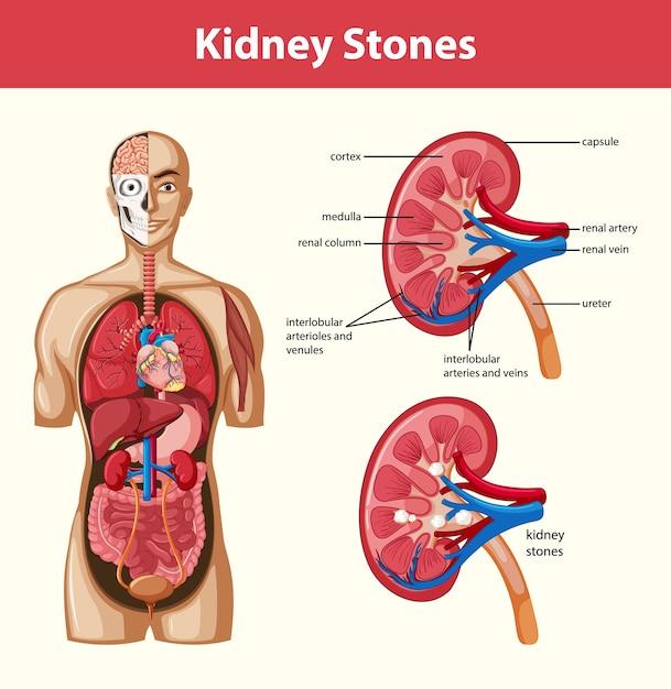Free Vector Human Kidney Stones Anatomy Cartoon Style Infographic
