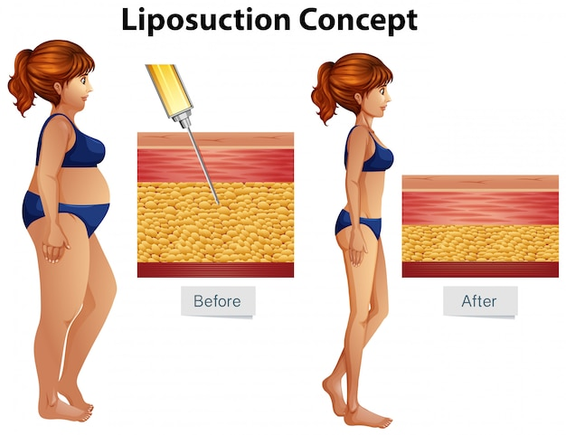 Liposuction surgery cost