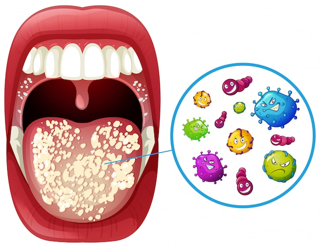 A human mouth virus infection Premium Vector