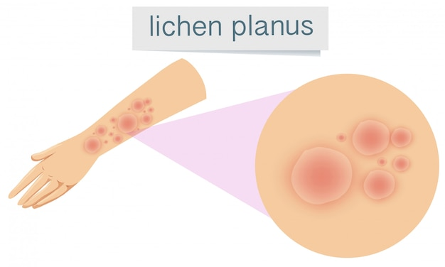 Human skin with lichen planus Free Vector