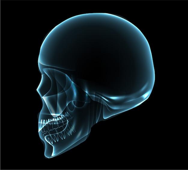 Human skull side view x-ray illustration Vector   Premium ...