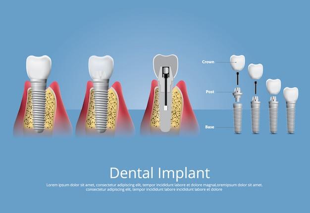 Человеческие зубы и зубные имплантаты векторные иллюстрации Бесплатные векторы