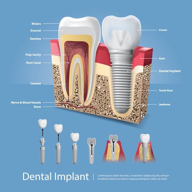 Human teeth and dental implant  illustration Premium Vector