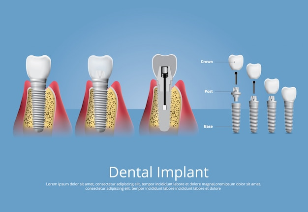 Human teeth and dental implant vector illustration Free Vector