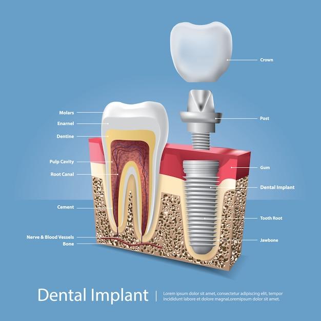 Illustrazione di vettore di denti umani e impianto dentale Vettore gratuito