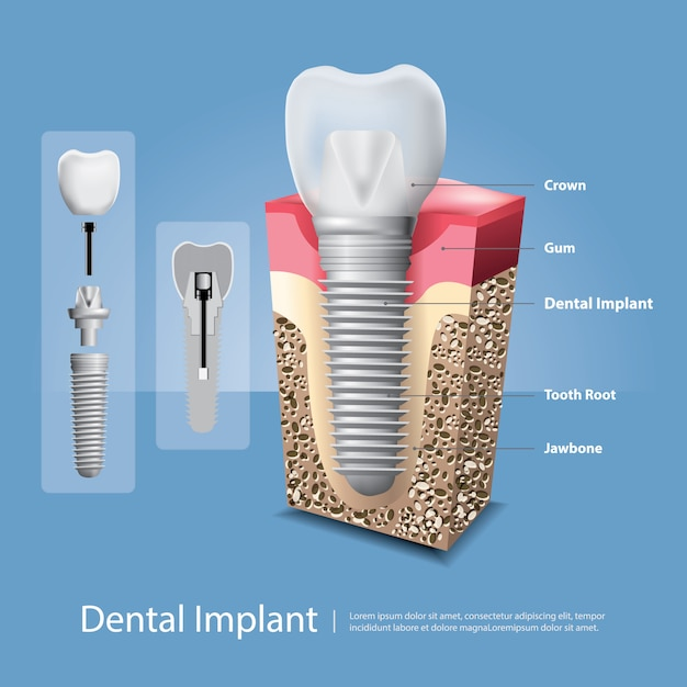 Human teeth and dental implant vector illustration Premium Vector